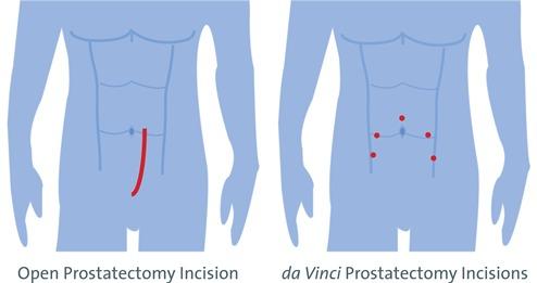 Prostate Surgery North Kansas City Hospital North Kansas City Mo